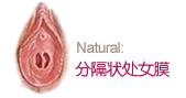 筛形状处女膜